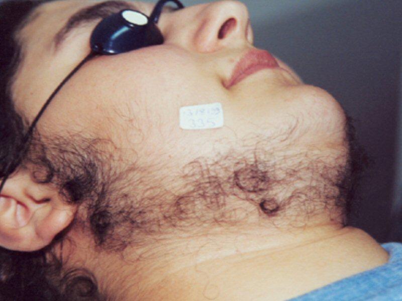 Laser Hair Removal Facial Hair Before