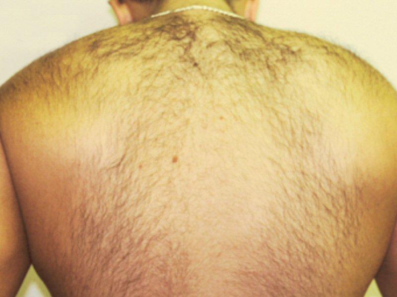 Laser Hair Removal Full Back Before