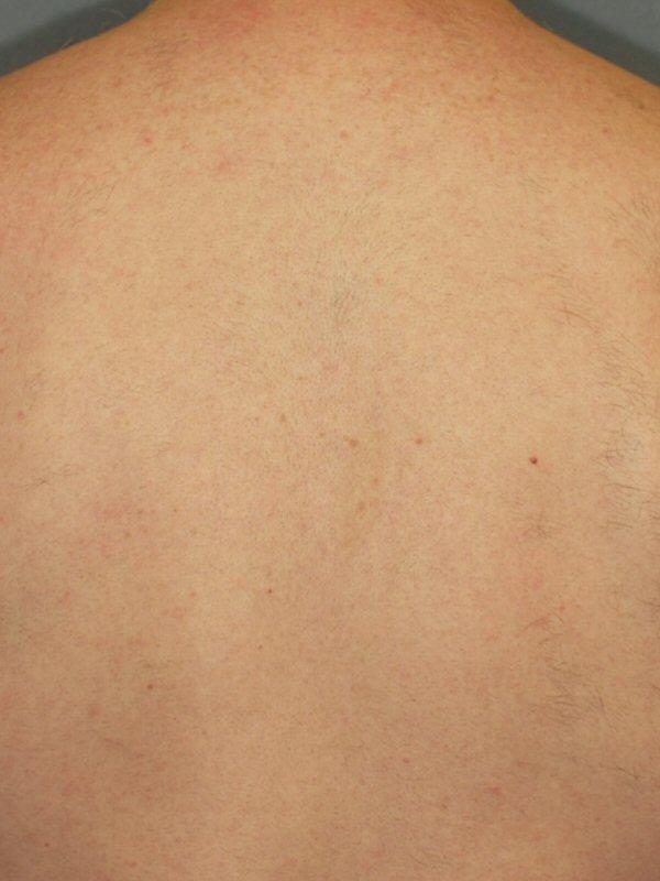 Laser Hair Removal Full Back After
