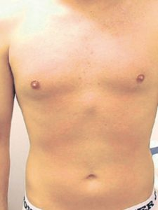 Laser Hair Removal Chest After