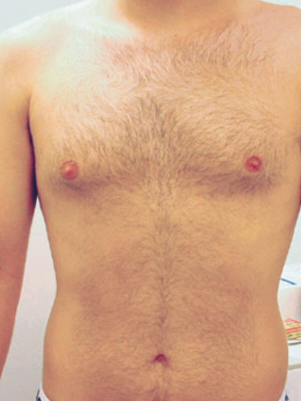 Laser Hair Removal Chest Before