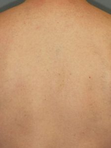 Laser Hair Removal Full Back After