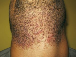 Laser Hair Removal Neck Before